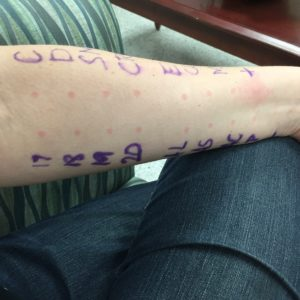 A picture of my left forearm where the nurse performed my allergy testing prick test