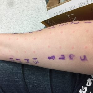 A picture of my right forearm where the nurse performed my allergy testing prick test