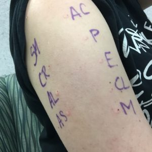 An image of my left upper arm where nurse injected allergens for my allergy testing, labeled with letters.